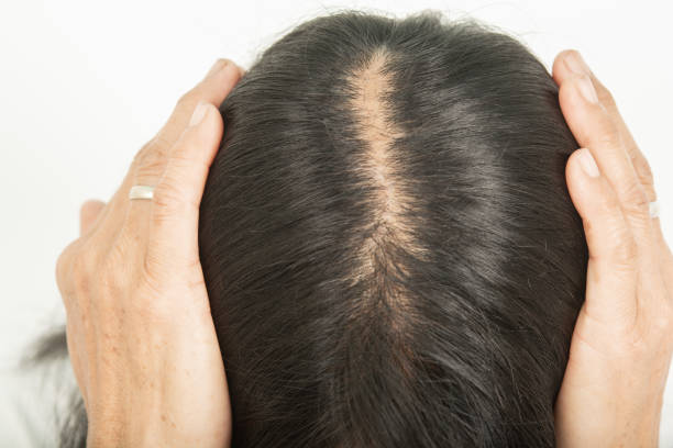 Scalp and thin hair, hair removal stock photo