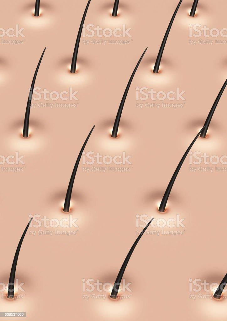 Kopfhaut Stockfoto 838537506   iStock