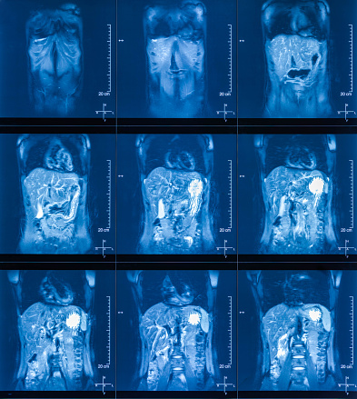 istock MRI Scan Human Abdominal Tomography 1152031722