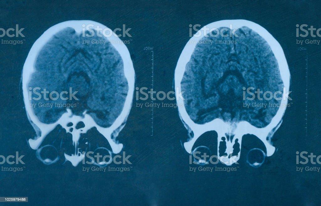 MRI scan human head flim