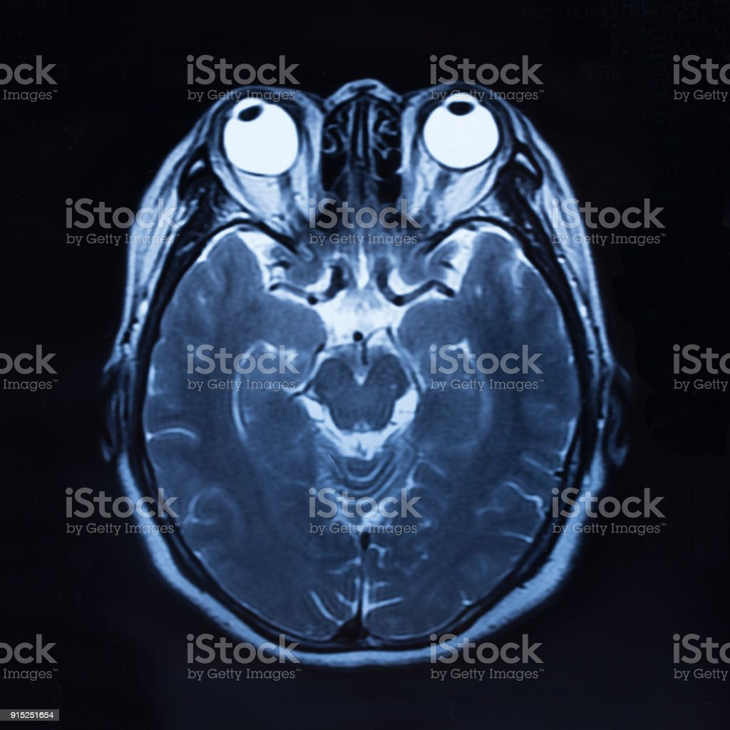 MRI scan human head flim stock photo
