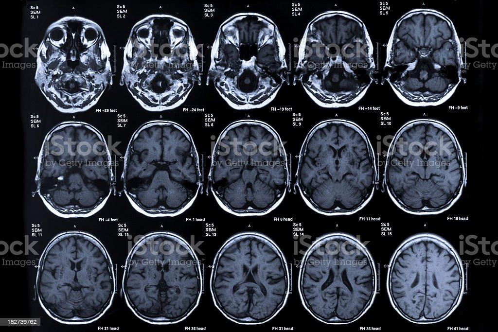 MRI scan human head royalty-free stock photo