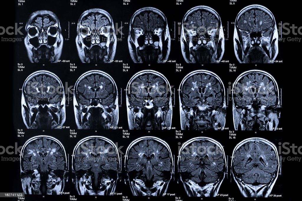 MRI scan of a human head. Image series. Medicine. Senior Woman....