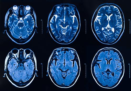 istock MRI scan human head Tomography 1141444525