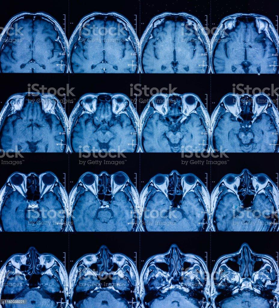 MRI scan human head Tomography