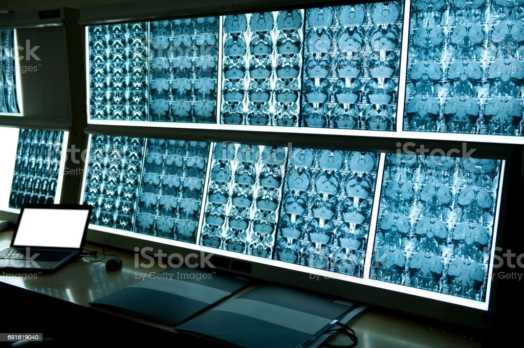 MRI scan image of brain stock photo