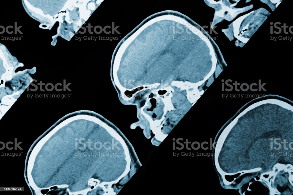 MRI scan image of head as medical background.
