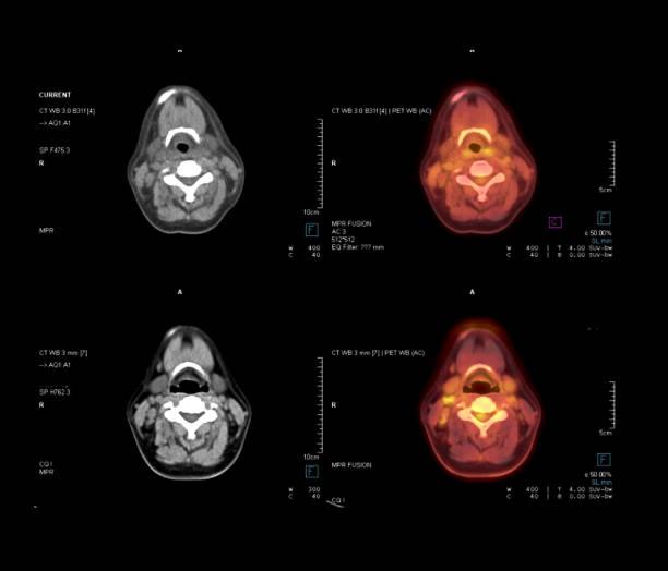 pet ct scan imagem de pescoço em comparação de plano axial tomografia computadorizada e pet ct para detectar recidiva do câncer no câncer de tireóide paciente. - cancer da tireoide - fotografias e filmes do acervo