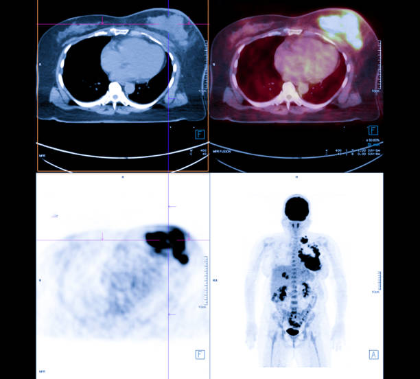 PET Scan image of whole body Comparison Axial , Coronal  plane in patient breast cancer recurrence treatment. PET Scan image of whole body Comparison Axial , Coronal  plane in patient breast cancer recurrence treatment. metastasis stock pictures, royalty-free photos & images