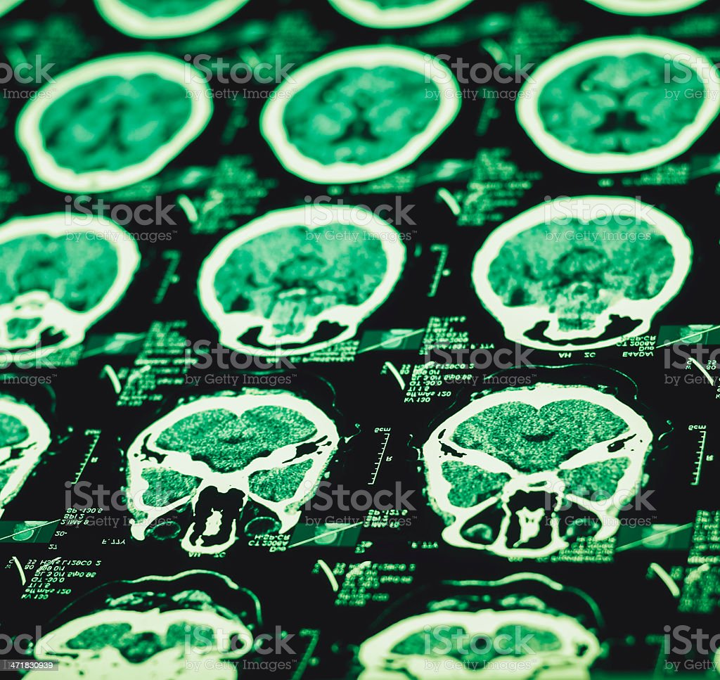 CT scan image stock photo