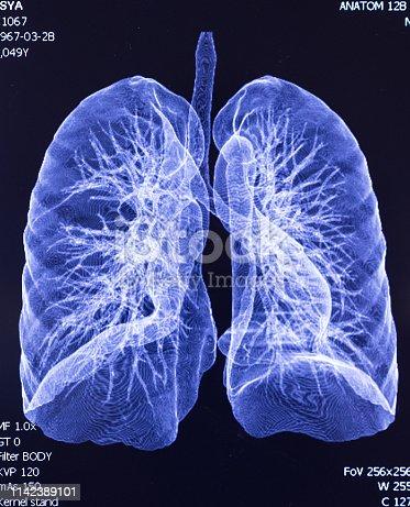 183306794 istock photo CAT Scan lung lobe 1142389101