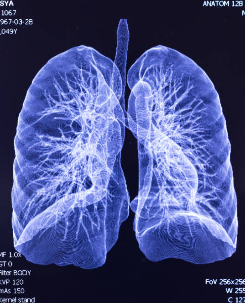 CAT Scan lung lobe CAT Scan lung lobe lung stock pictures, royalty-free photos & images