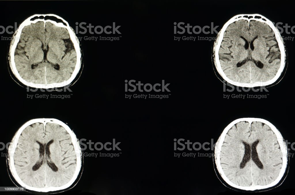 CT scan of a brain stock photo