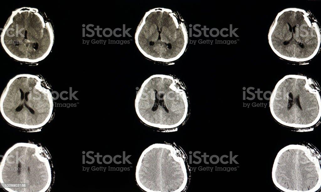Ctscan Des Gehirns Stock-Fotografie und mehr Bilder von Anatomie ...