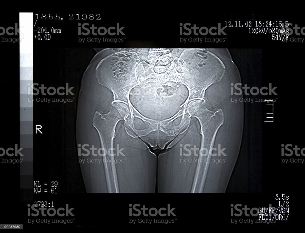 Scan of a Broken Pelvis stock photo