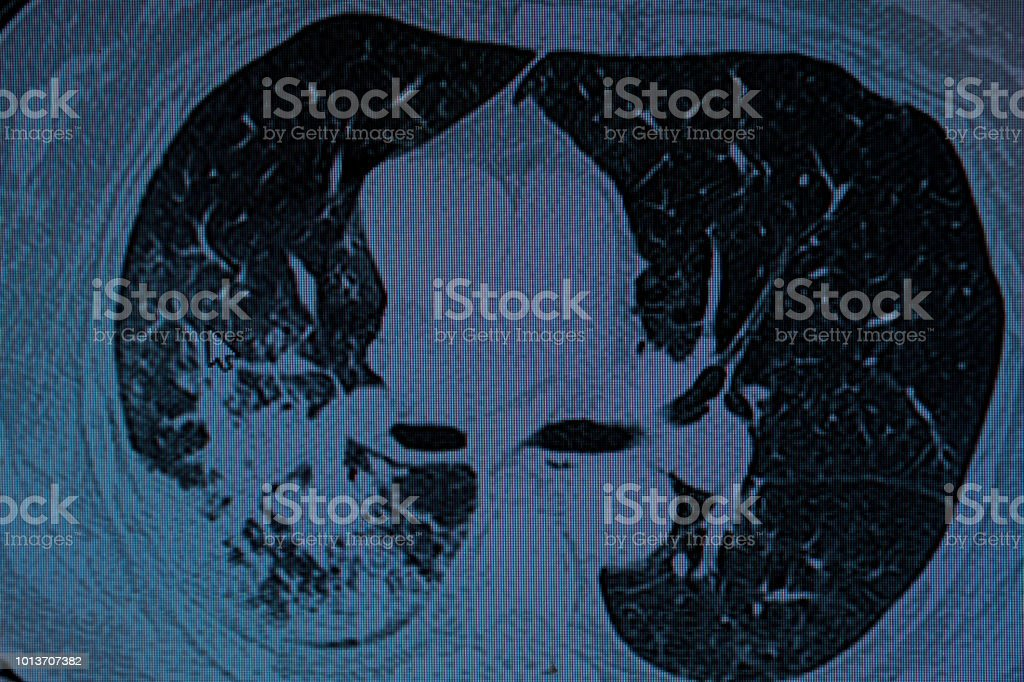 CT Scan of a Male patient with Right Lung Pneumonia stock photo