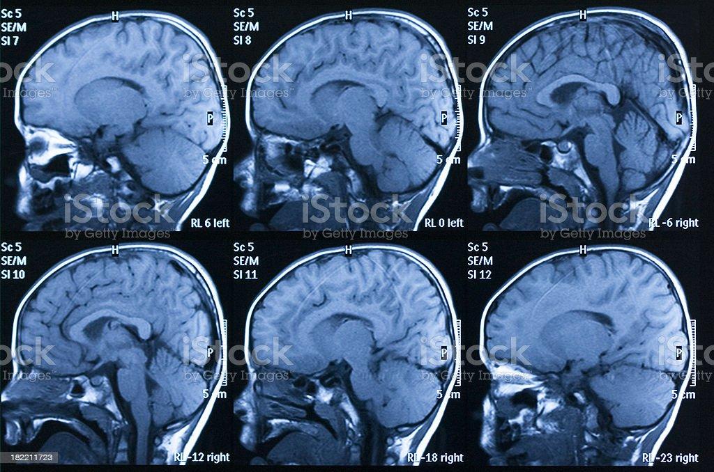 MRI scan of brain royalty-free stock photo