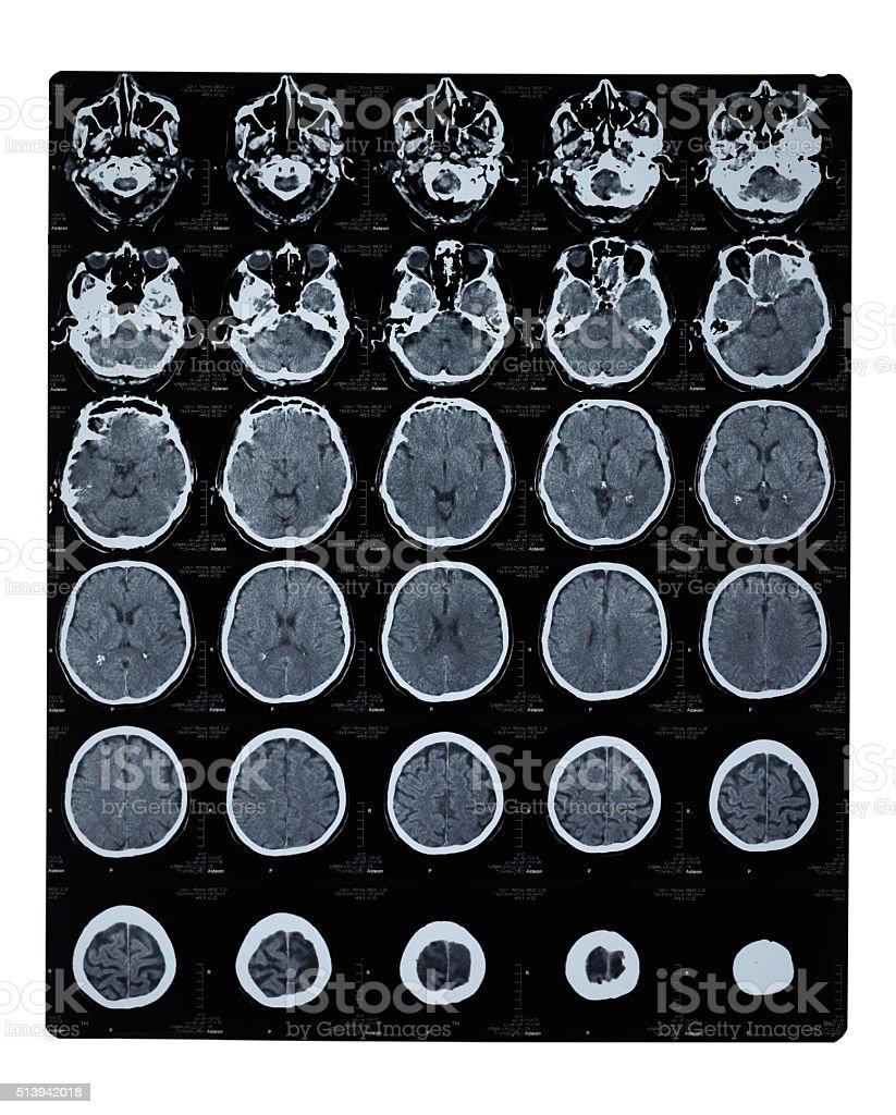 Mri Scan Des Gehirns - Stockfoto | iStock