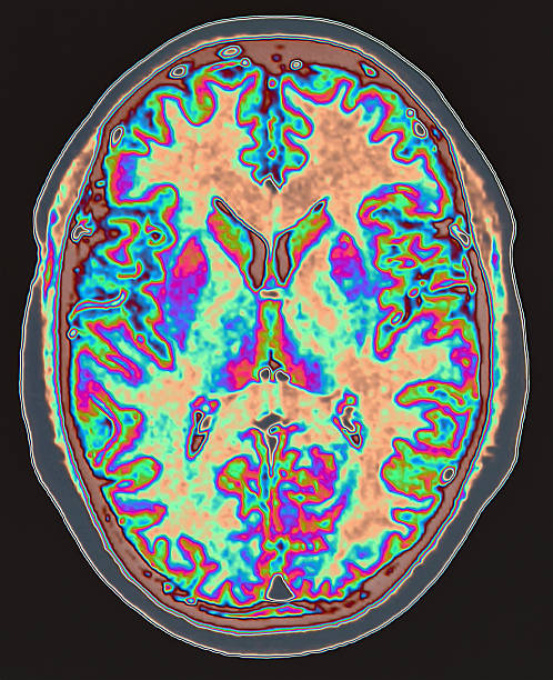 MRI scan of brain  neurosurgery stock pictures, royalty-free photos & images