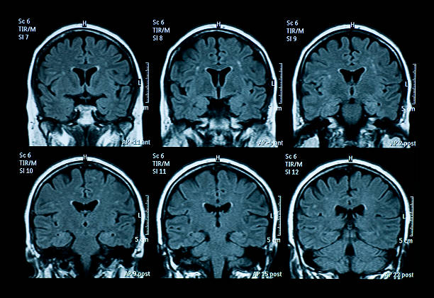 MRI scan of brain MRI scan of brain neurosurgery stock pictures, royalty-free photos & images