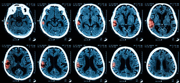 CT scan of brian, Intracerebral hemorrhages. stock photo