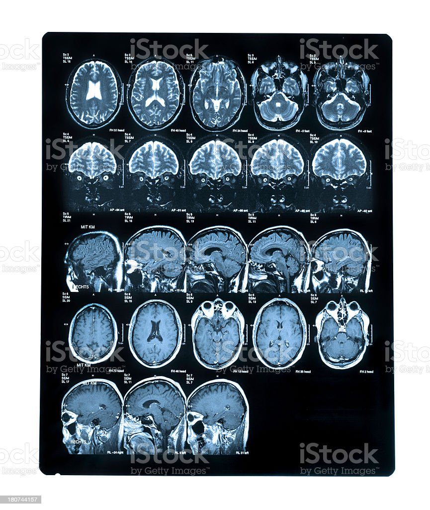 Scan of Human Head stock photo
