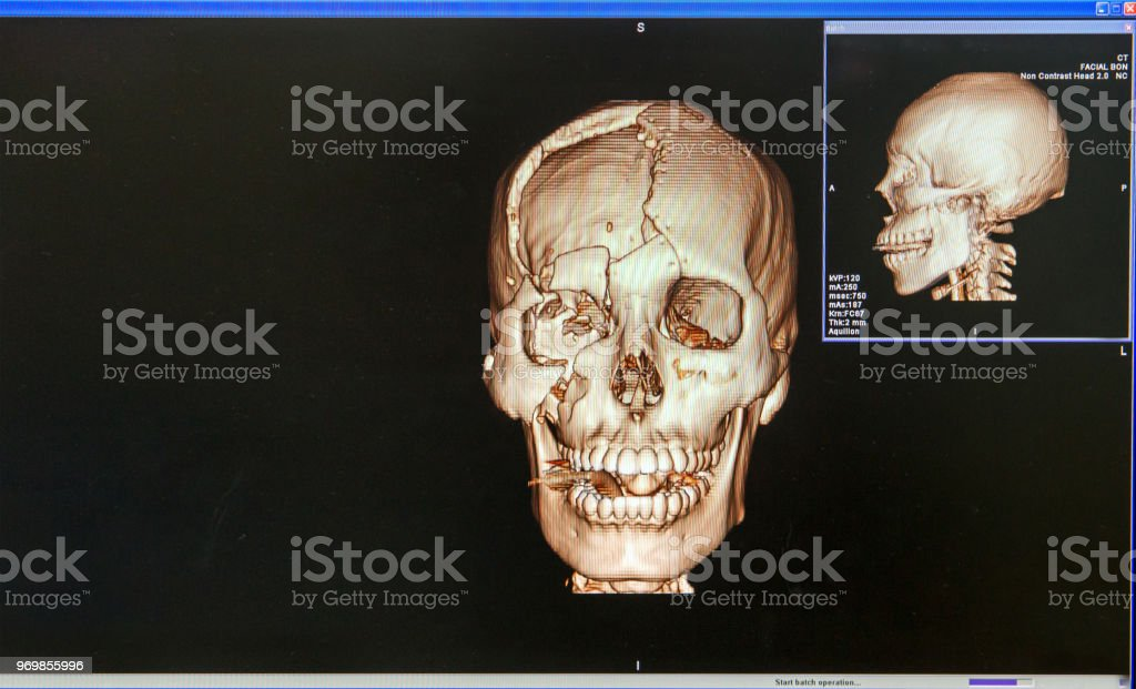 Ct Scan Of Human Skull And 3d Closeup Of A Ct Scan With Brain Stock
