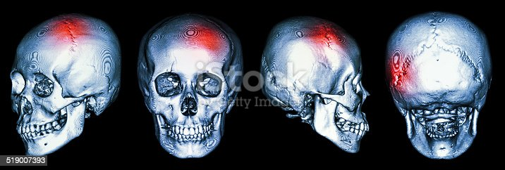 istock CT scan of human skull and 3D with Stroke 519007393