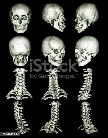 CT scan (Computed tomography) with 3D graphic show normal human's skull and cervical spine