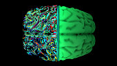 istock MRI scan of the brain in the color green 1192184547
