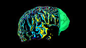 istock MRI scan of the brain in the color green 1192187262
