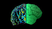 istock MRI scan of the brain in the color green 1192188133