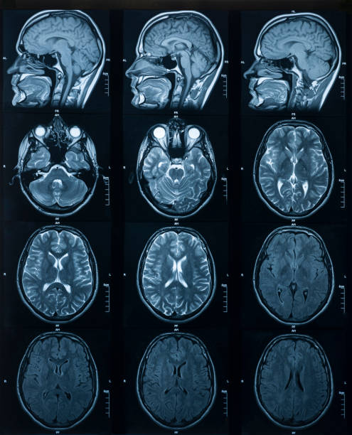 MRI scan of the brain. Medicine and Health stock photo