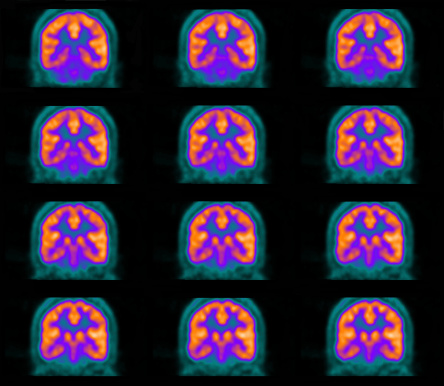 Pet Scan Of The Brain Stock Photo - Download Image Now