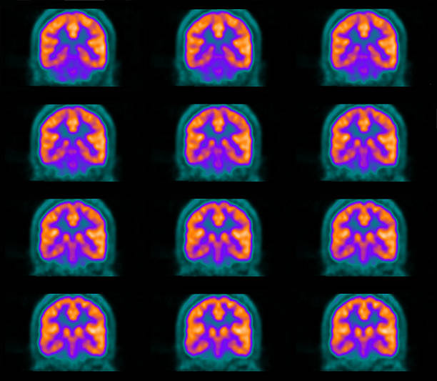 PET (positron emission tomography) scan of the brain stock photo
