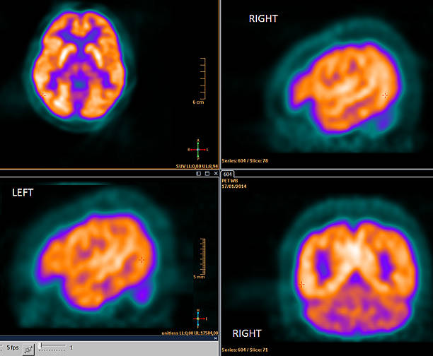 PET-CT scan of the brain stock photo