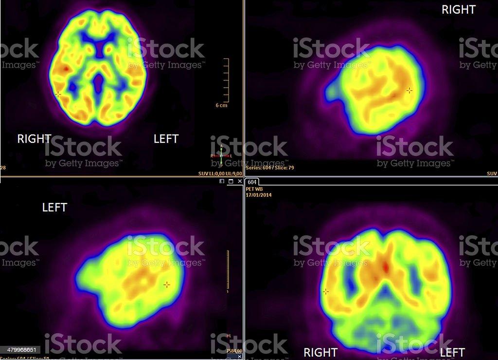 PET (positron emission tomography) scan of the brain stock photo