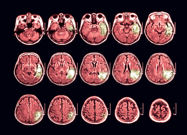 MRI scan of the brain, transverse view stock photo