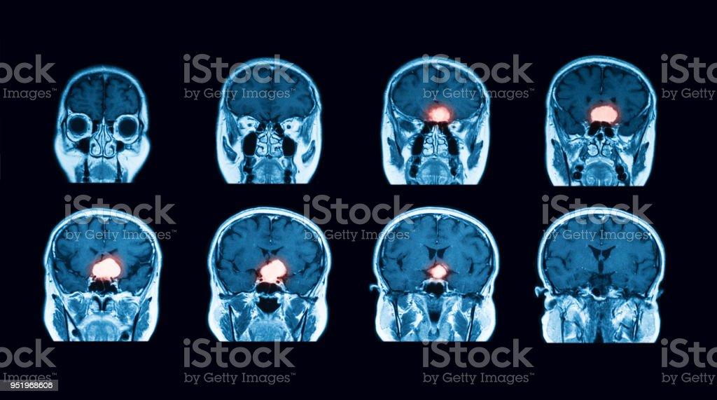 Fotografía de Exploración De Mri Del Cerebro Vista Transversal y más ...