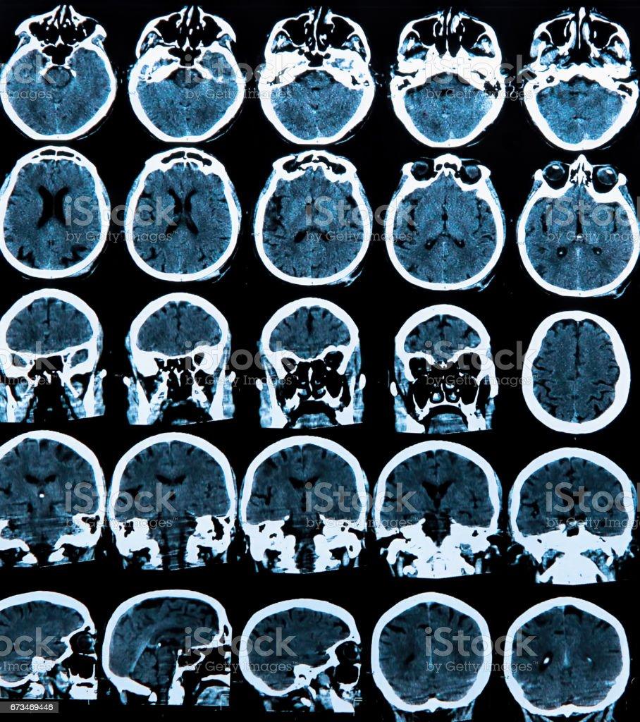 MRI scan of the head stock photo