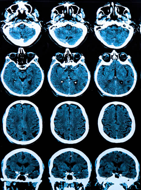 MRI scan of the human brain MRI scan of the human brain neurodegeneration stock pictures, royalty-free photos & images