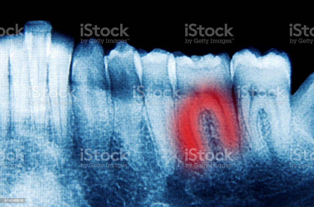 Scan of the painful teeth stock photo