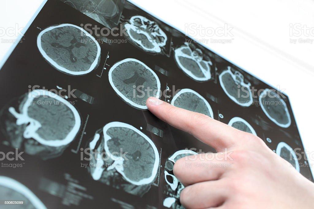 CT-scan des Patienten-Gehirn und der hand einen Arzt. - Lizenzfrei Alzheimer-Krankheit Stock-Foto