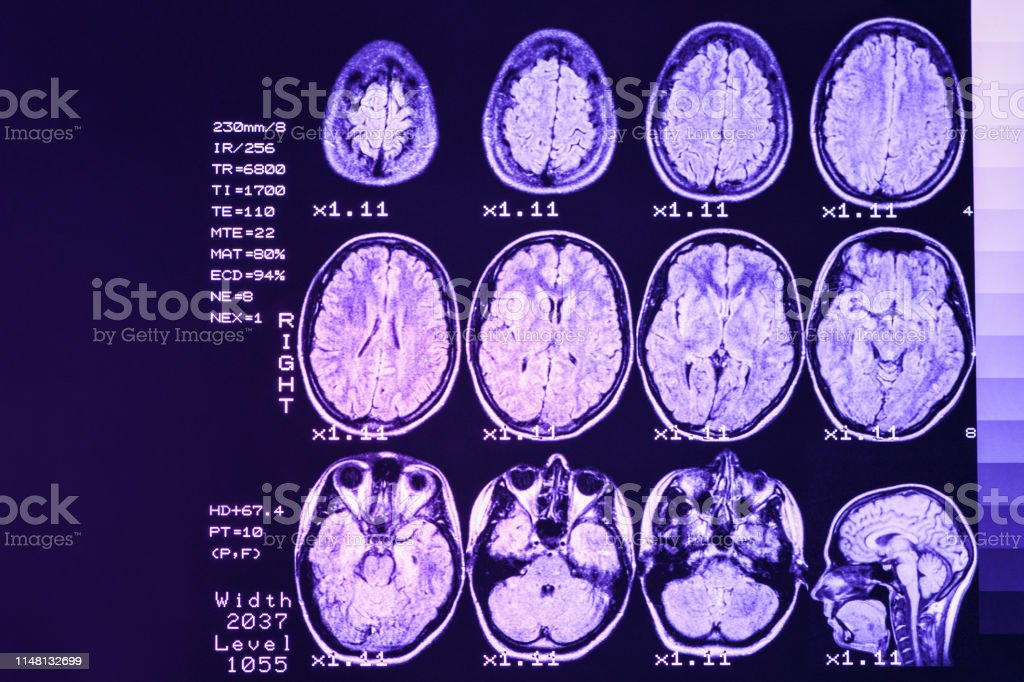 MRI scan or magnetic resonance image of head and brain scan. The...