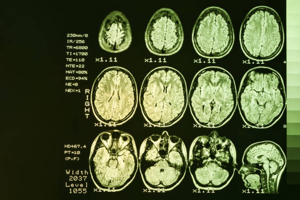 MRI scan or magnetic resonance image of head and brain scan. The result is an MRI of the brain with values and numbers with yellow backlight. MRI scan or magnetic resonance image of head and brain scan. The result is an MRI of the brain with values and numbers with yellow backlight. occipital lobe stock pictures, royalty-free photos & images