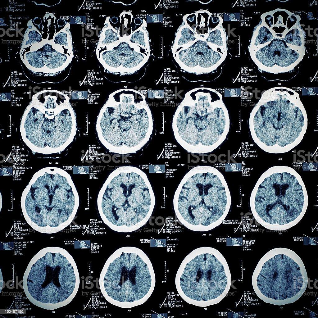 MR scan pattern of human head stock photo