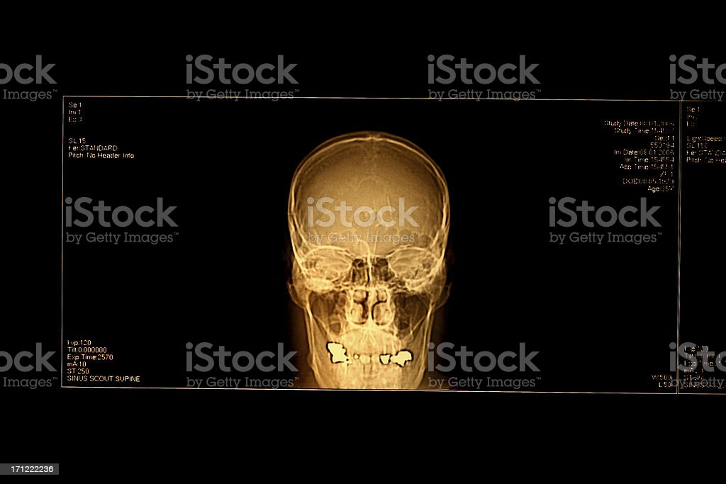 C T - Scan royalty-free stock photo