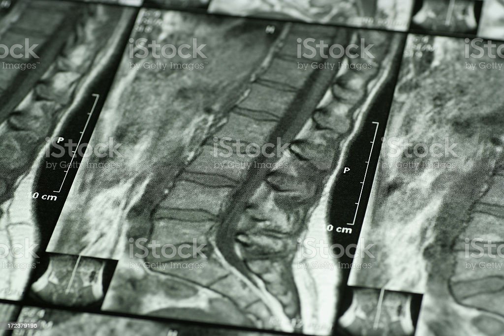 CAT scan royalty-free stock photo