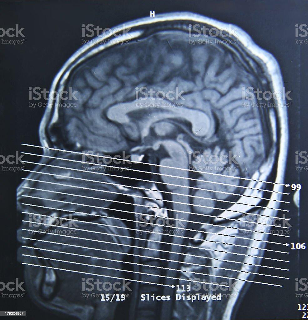 MRI Scan royalty-free stock photo