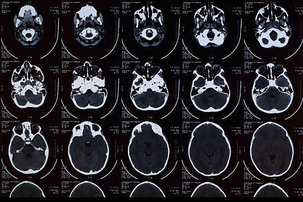 MRI Scan stock photo